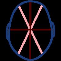 shema de la forme d'un crane après correction avec le casque