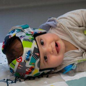 Un bébé porte un casque de correction plagiocéphalique élaboré par BMO