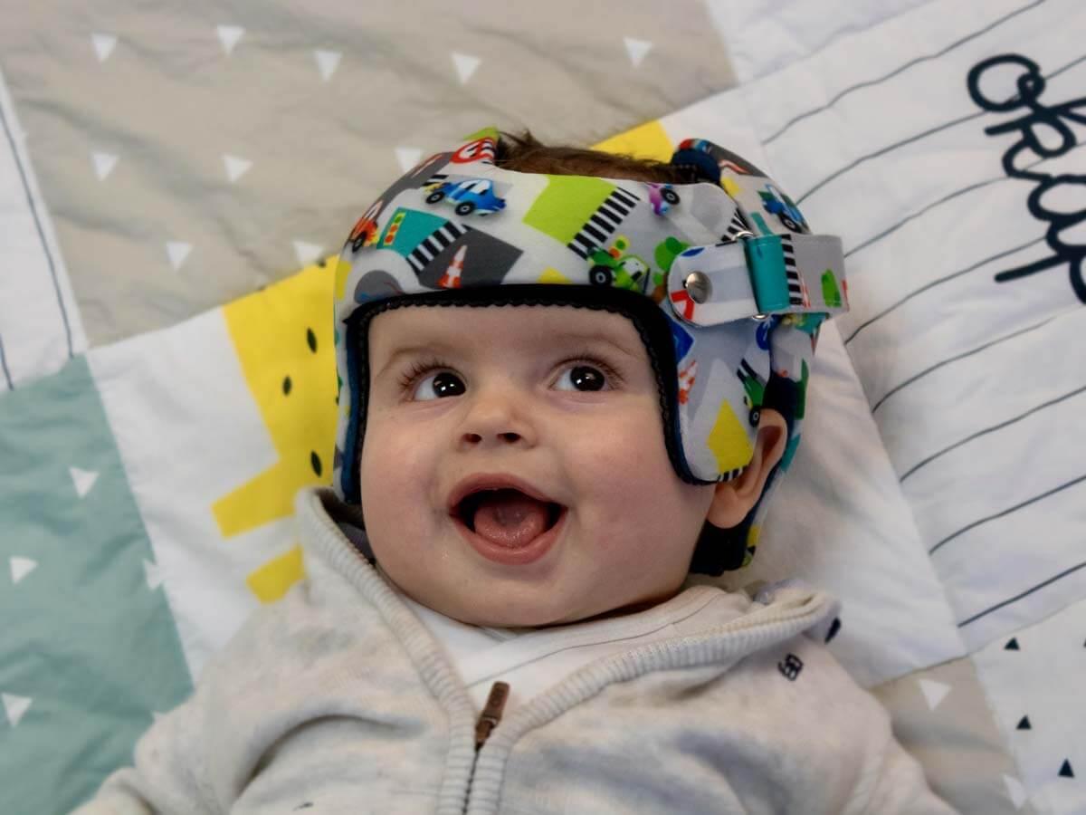 Un bébé porte un casque plagiocéphalique parfaitement ajusté