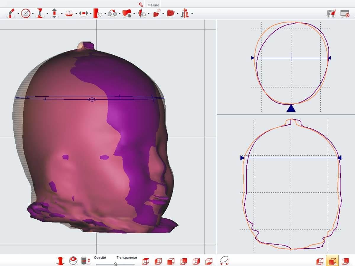 Visualisation 3D du crâne d'un patient en plagiocéphalie